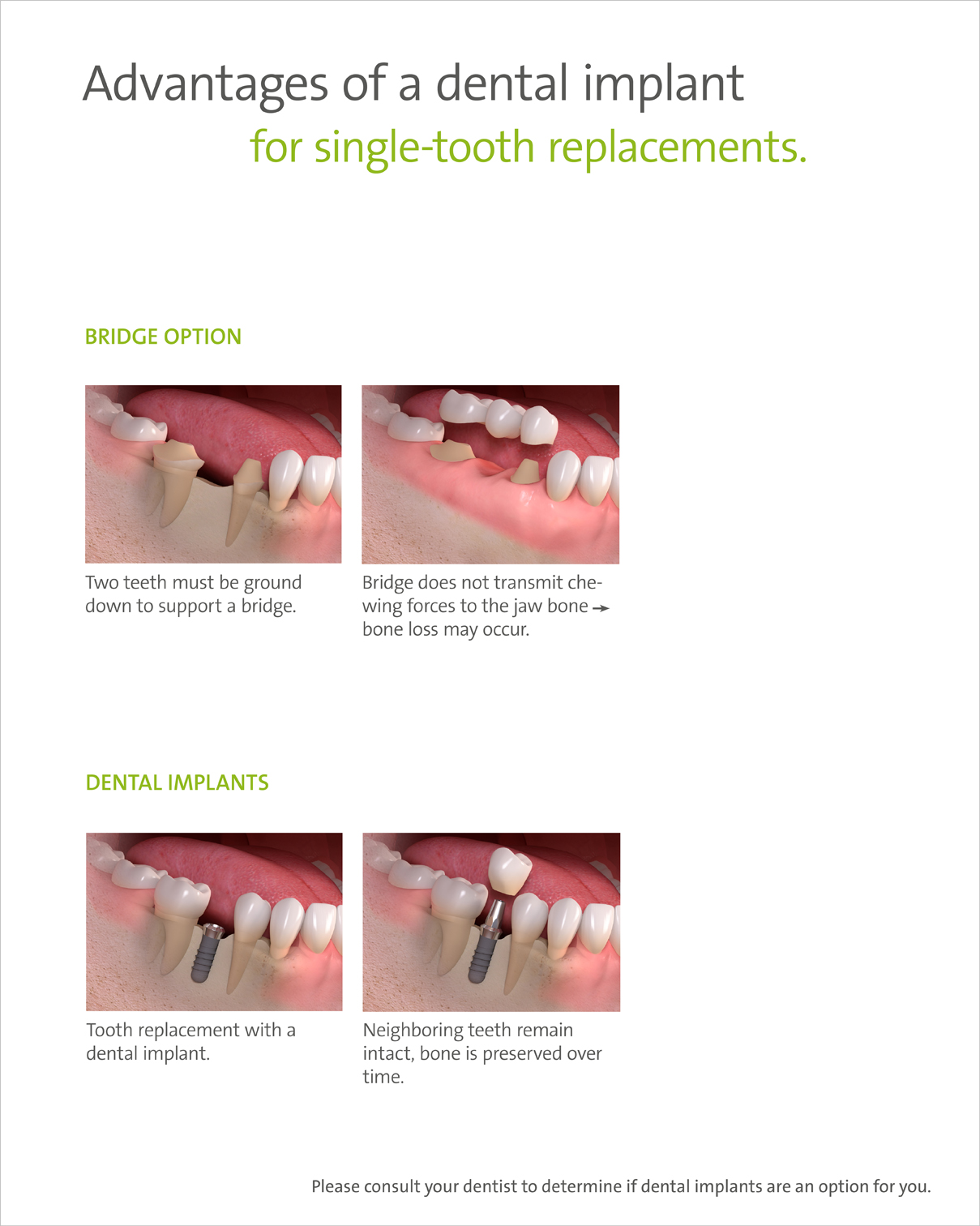 adavantages of a dental implant for single tooth replacements